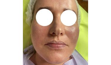 Efekty zabiegu Rosacea Peel marki Rhonda Allison.